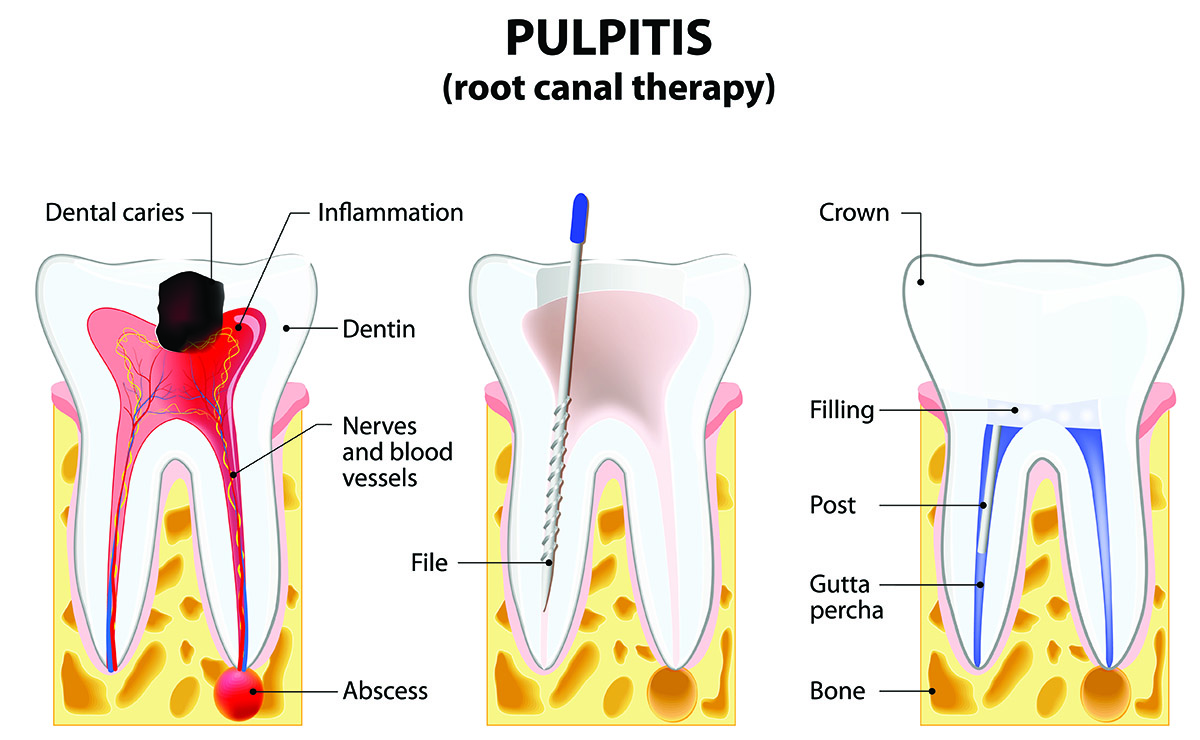 Root Canal Treatments – Thomas Spray, DDS – Family Dental